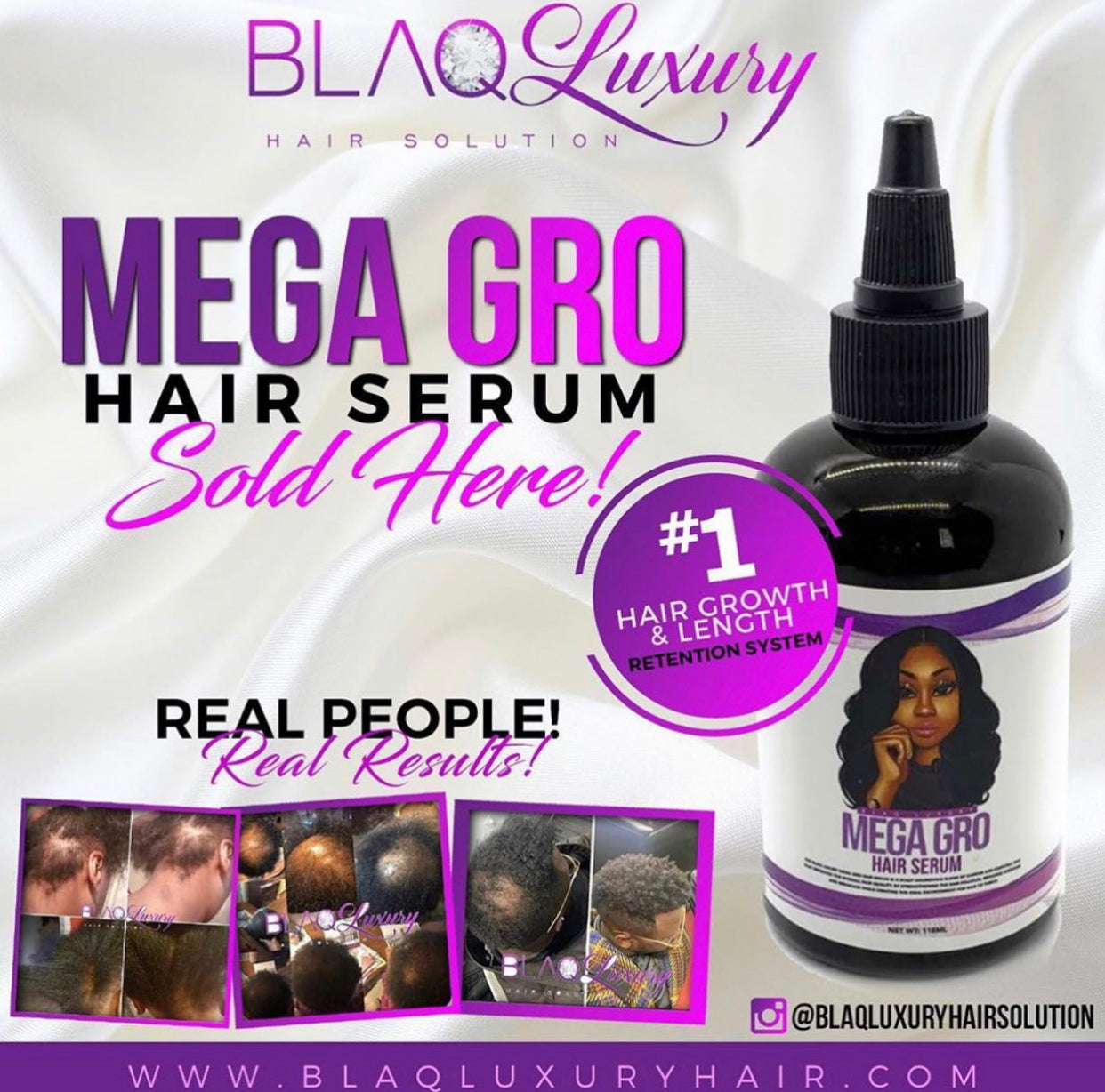 #1 HAIR GROWTH SYSTEM! PEOPLE ARE SEEING RESULTS IN AS LITTLE AS 7 DAYS!!