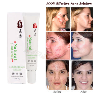 Pimples Fast Heal Acne Scars Repair Red Spots Facial Smooth Care Natural Plant
