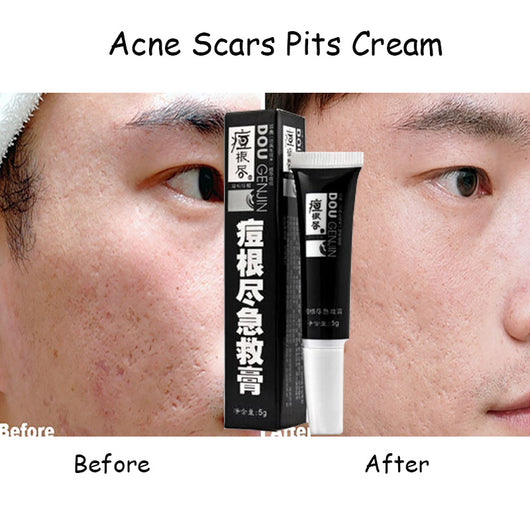 Acne Scars Pit Cream lightening anti acne cream