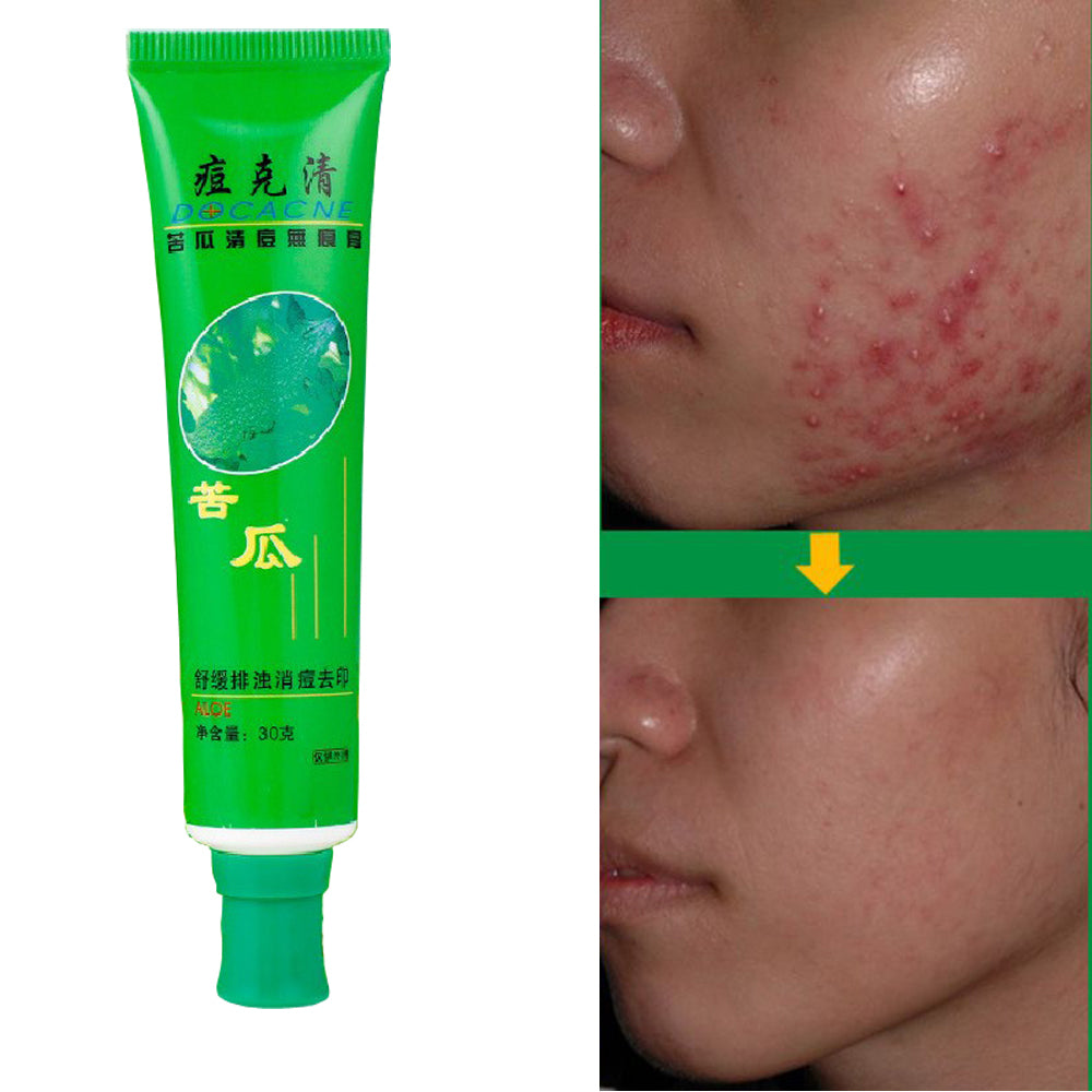 Anti-Acne Cream Ointment Acne Removal Unguent Acne Treatment and Scar Repair