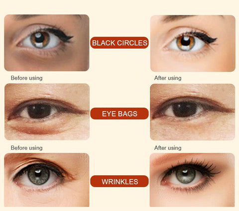 Image of Eye Serum for Dark Circles, Wrinkles, Puffiness, Crow's Feet, Fine Lines & Bags