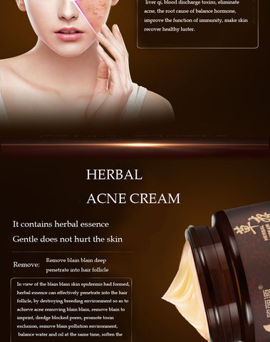 Image of Herbal Acne Cream Anti Pimple Spot Acne Scars Blackhead Removal Cream
