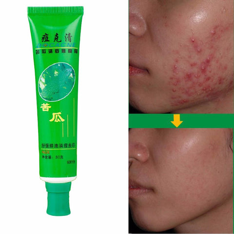 Image of Anti-Acne Cream Ointment Acne Removal Unguent Acne Treatment and Scar Repair