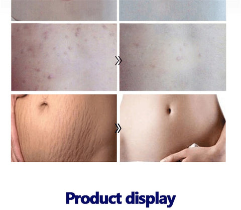 Scar Removal Lavender Oil For Pregnant Women