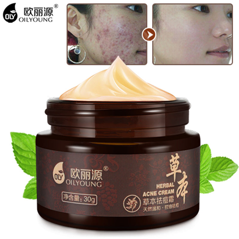Herbal Acne Cream Anti Pimple Spot Acne Scars Blackhead Removal Cream