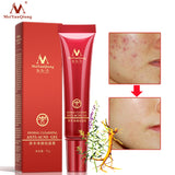 Herbal Cleansing Gel Face Anti acne treatment cream Herbal scar removal