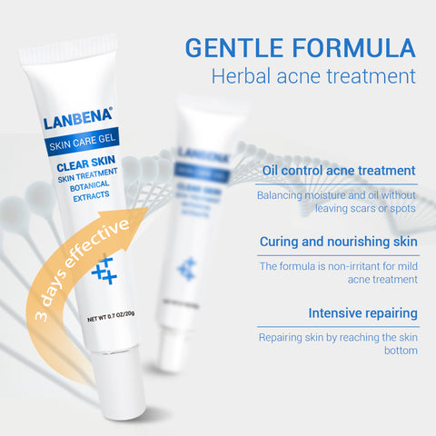 Image of Acne Scar Remove Skin Care Acne Treatment Shrink Pores Gel Bleaching Creams