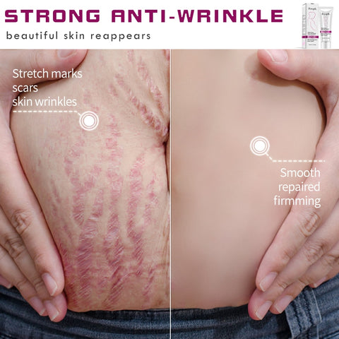 Image of Stretch Marks Treatment