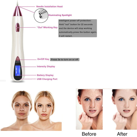 Image of Freckle Moles Removal Laser USB Pen LCD Display Sweep Mole Dark Spot Remover Machine Charged