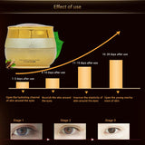Whitening Snail eye Cream beauty Skin care Moisturizing Anti-Puffiness Anti-Aging Dark Circle Lift Firming Cream