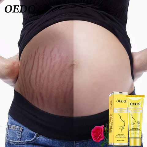 Rose Remove Stretch Marks Cream