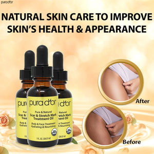1oz Scar and Stretch Mark Treatment Oil