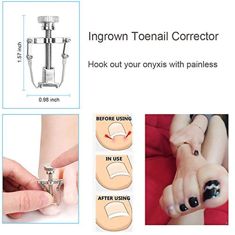 Image of Home Treatment for Ingrown Toenail -Surgery Grade Kit - AVM