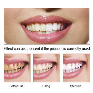 Teeth Whitening Essence