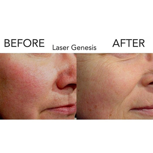 Laser Genesis Treatment-Christopher Jones MD PC