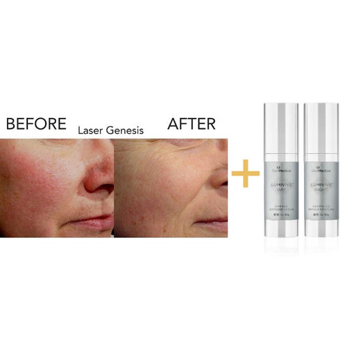 Laser Genesis - 3 Treatments Plus Bonus Gift!-Christopher Jones MD PC