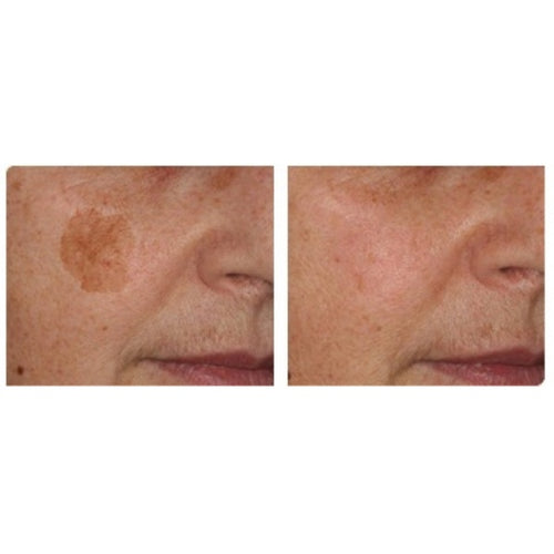 IPL Treatment-Christopher Jones MD PC