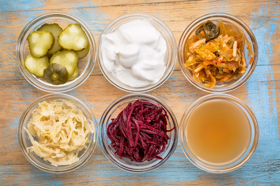 Image of fermented probiotic foods on a table from above