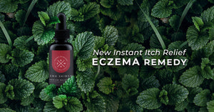 NEW Instant Itch Relief Eczema Treatment!