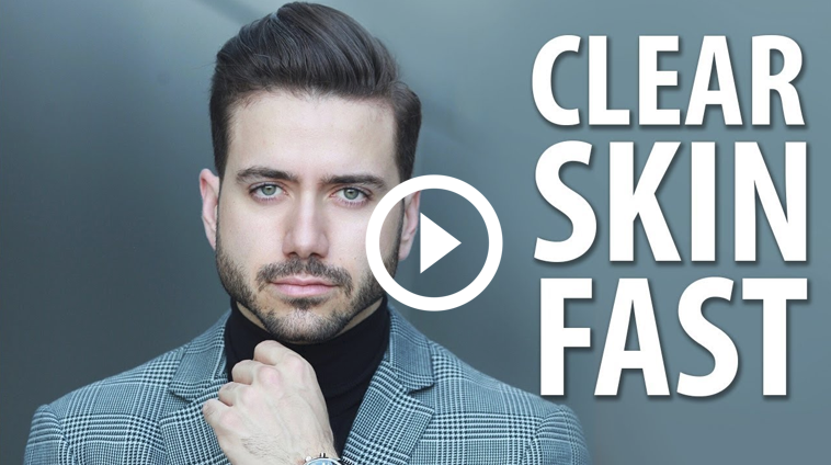 Clear Skin Fast by Alex Costa