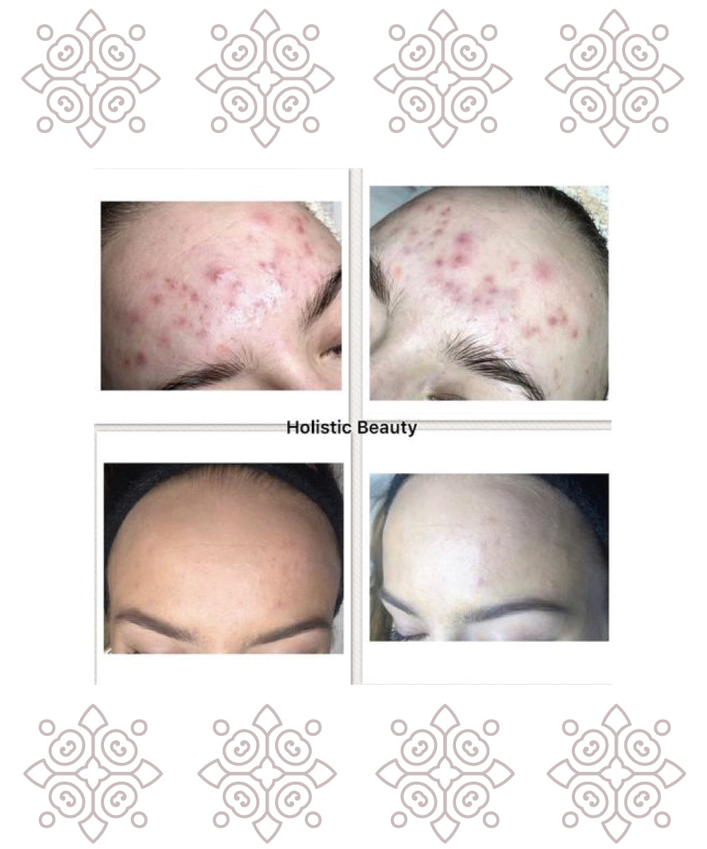 Reference - Kundeudtalelse | Holistic Beauty
