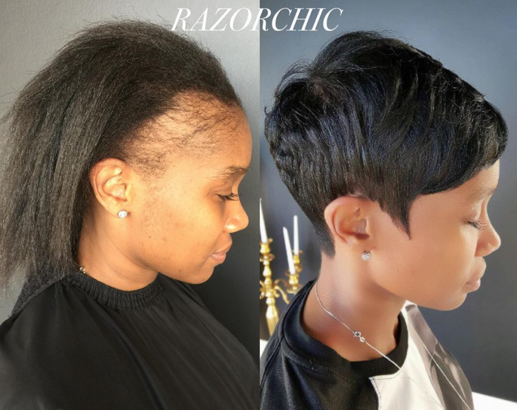 5 Ways to Reduce Traction Alopecia