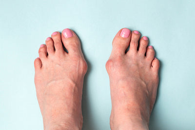 How To Relieve Bunion Pain Without Surgery