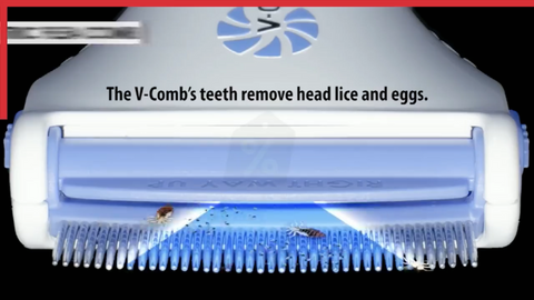 Electric head comb Remove the flea louse