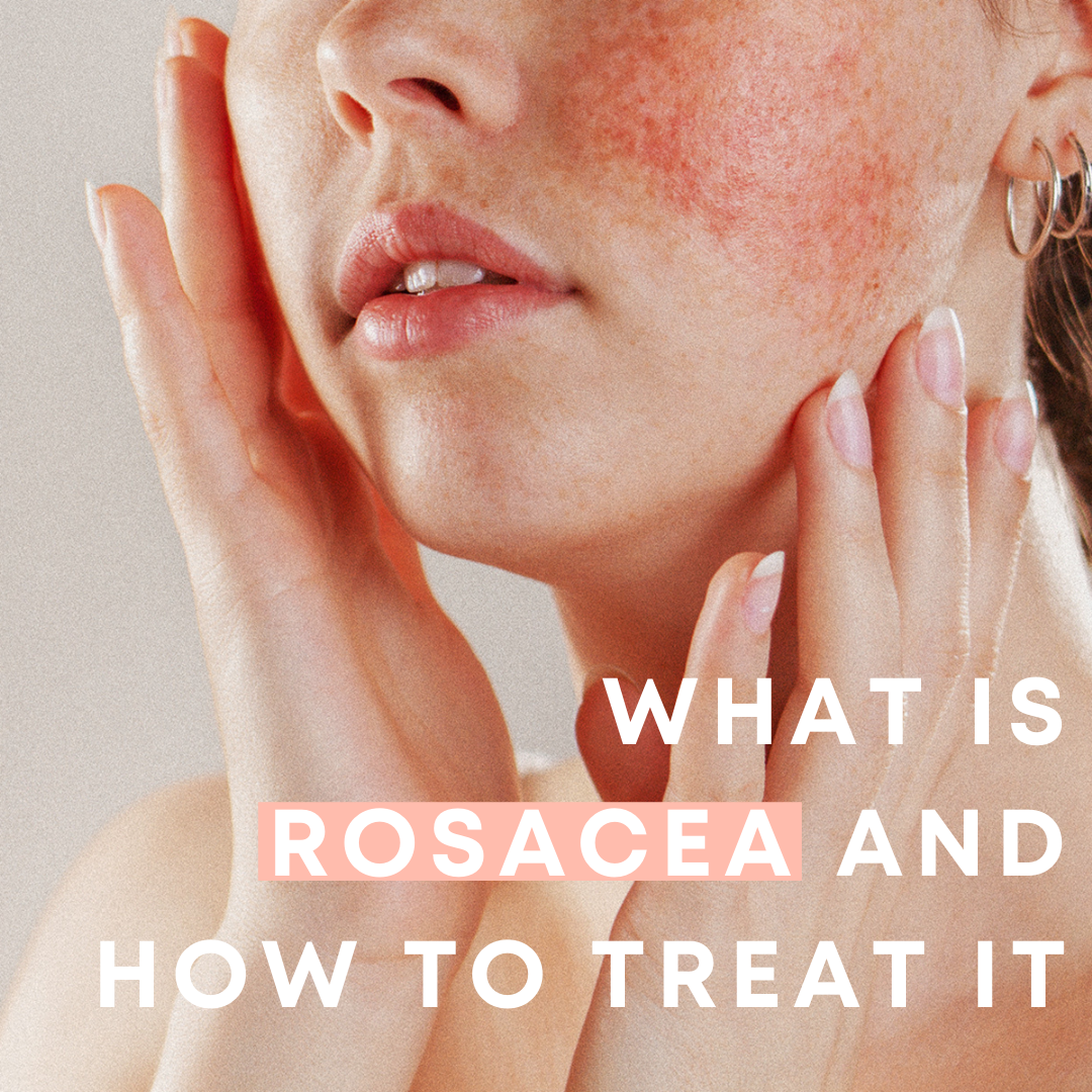 What is rosacea and how can you treat it?