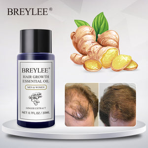 BREYLEE Hair Growth Essential Oil 20ml Fast Powerful Hair Products