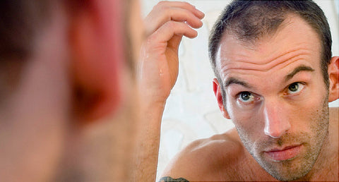 Natural Male Hairloss treatments