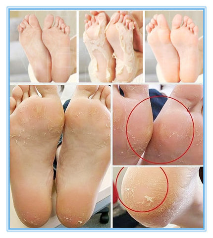 1 Baby Foot Mask for Removing Dead Skin - Paradisegadgets.com