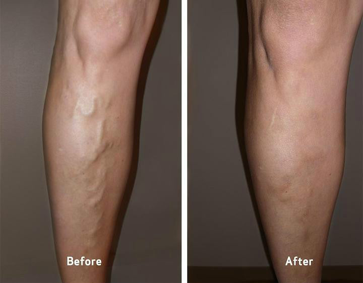 Varicose Veins Ointment