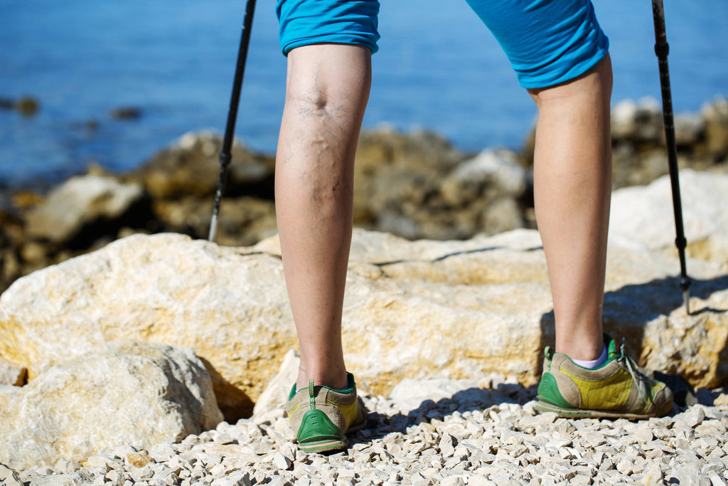 Varicose Veins – How do they develop and how can they be managed?