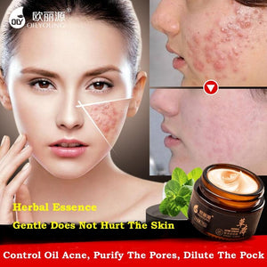 Herbal Acne Cream Anti Pimple Spot Acne Scars Extraction Blackheads Cream Whitening Beauty Skin Face Care Creams Acne Treament