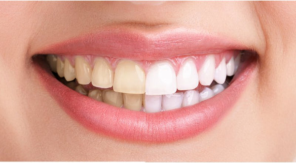Teeth Discoloration: Its prevention and treatment