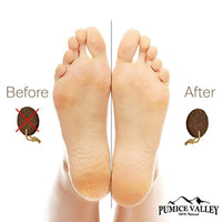 Pumice Stone for Feet - Eco-Friendly - Healthy Foot Care Scrubber - Eco Trade Company