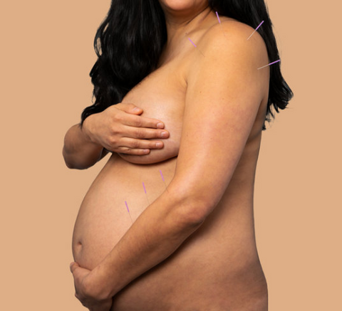 pregnant mama belly with acupuncture needles