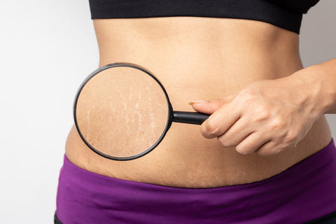 stretch marks go away after weight loss