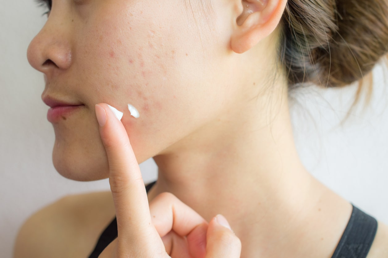 does exercise reduce acne