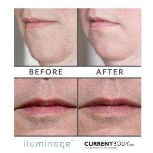 Before and After Hair Removal: iluminage Precise Touch