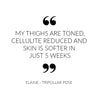 My thighs are toned, cellulite reduced and skin is softer in just 5 weeks - TriPollar Pose Customer Quote by Elaine