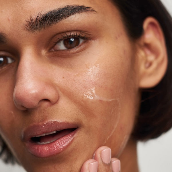 Tranexamic Acid Hyperpigmentation Treatment