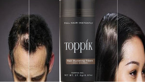Can Toppik Cause Hair Loss?