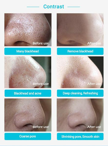 Nose Mask Pore Strip benefits