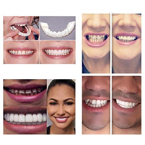 【TOP&BOTTOM FREE SHIPPING】LIMITED SUPPLY-THE AMAZING PERFECT& CONFIDENT SMILE