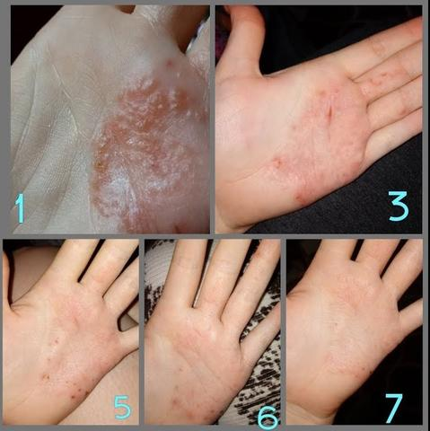Advance Antibacterial Psoriasis & Eczema Ointment Cream