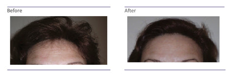 Skin Needling Before and After photos 2