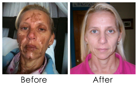 Skin needling before and after photo 1