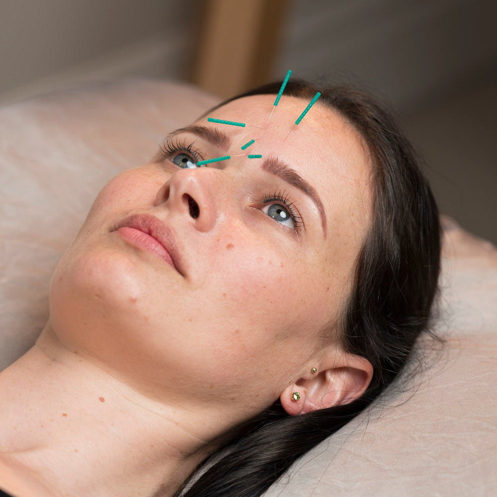 White Lotus Cosmetic Acupuncture Training Online